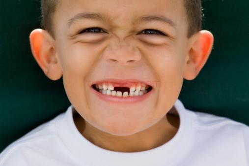 Mơ thấy rụng răng là một giấc mơ tốt hay xấu?